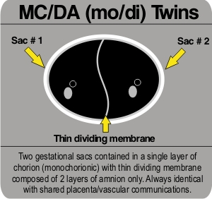 Identical twins part 2 3