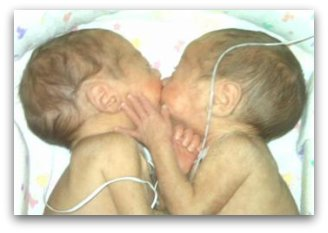 Preemie twins in NICU