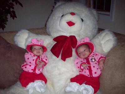 My miracle mono mono twins Alyssa and Alexis