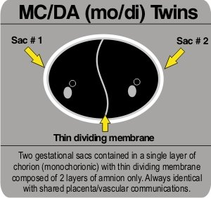 Detecting Twins With Ultrasound - Is it twins or not?